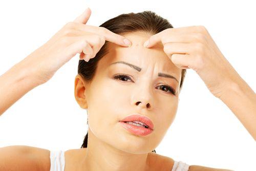Como Atenuar o Acne (1)